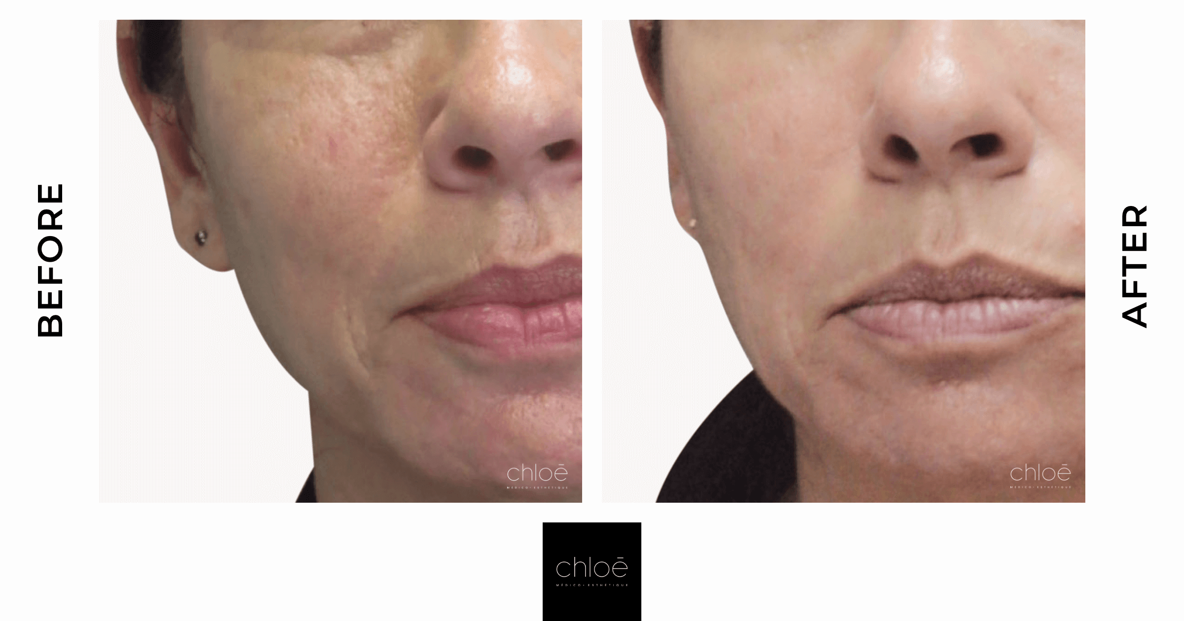 Large Pores Treatment | IPL | Clinique Chloe