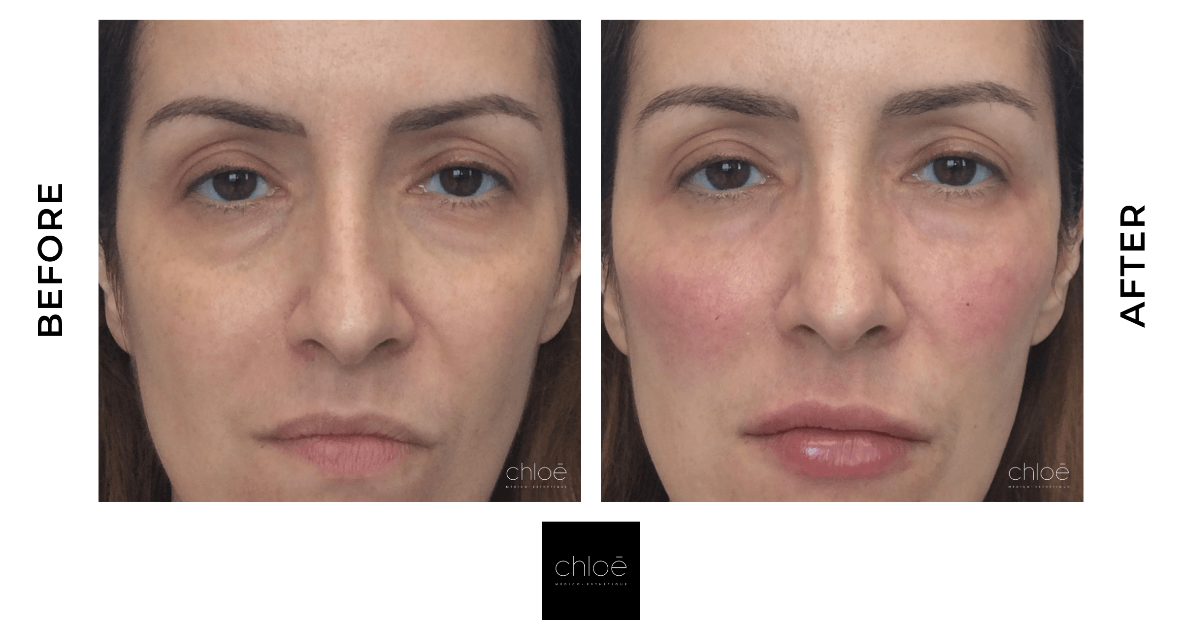 Non Surgical Facelift | Hyaluronic Acid | Clinique Chloe